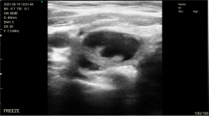 airway ultrasound examination