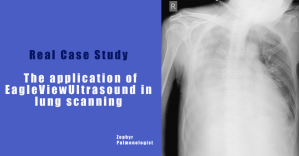 The application of Eagleview Ultrasound in lung scanning