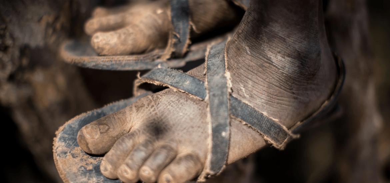 Pieds de Katungula
