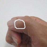 マッサージ師の関節変形