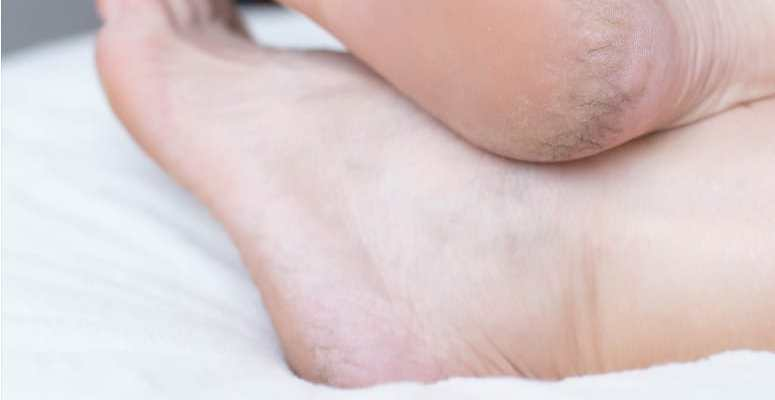 how to cure a cracked heel