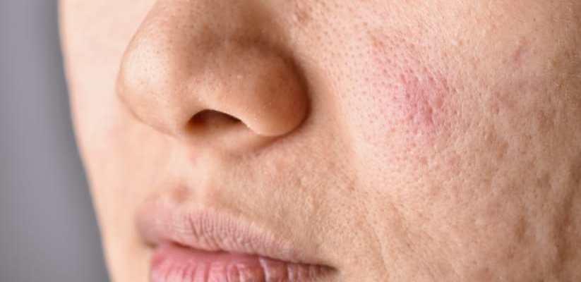 Open skin pores