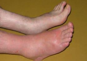 pieds gonflés homme