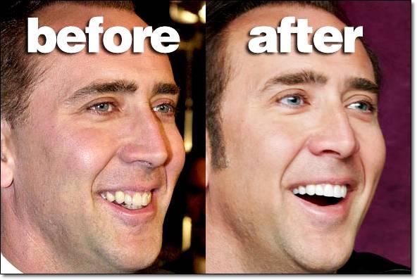 จัดฟัน ก่อนจัด หลังจัด