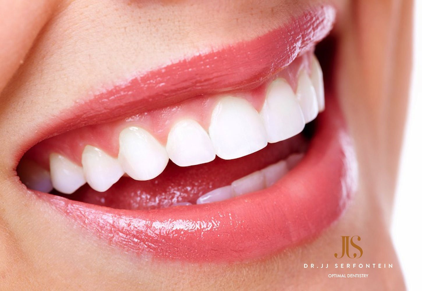 3 ways to get straighter teeth without unsightly braces