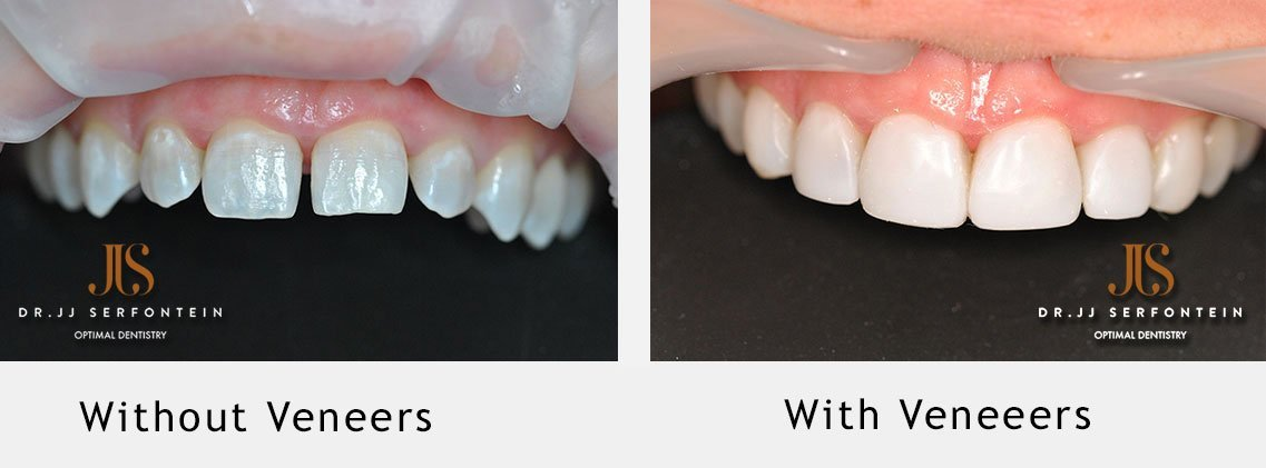 5 misconceptions about veneers