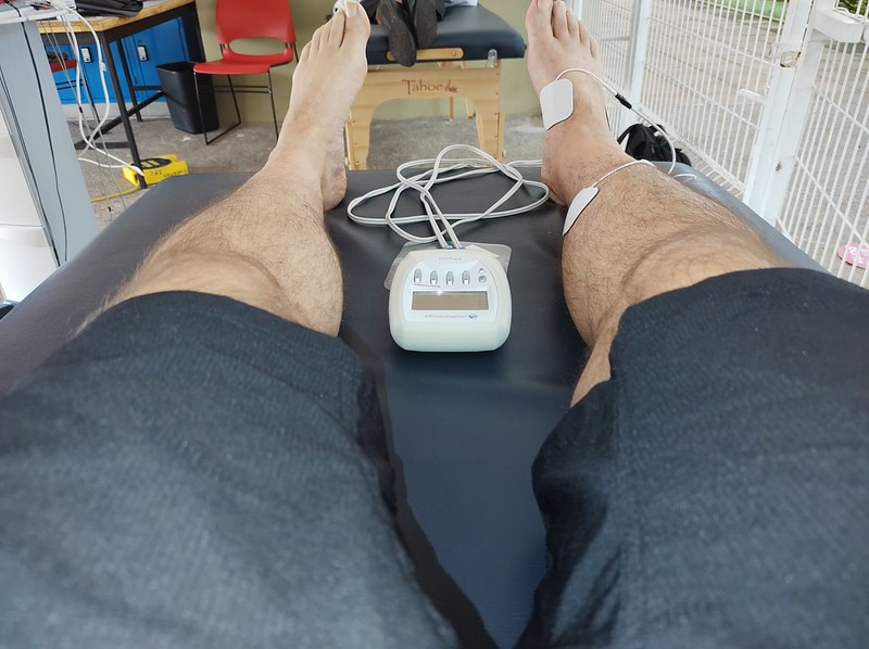A picture from my knees down of my legs with the right leg hooked up to a portable electrotherapy stimulator.