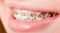Efek Samping Penggunaan Kawat Gigi