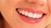 Kesehatan Gigi: Mencegah Lebih Baik daripada Merawat