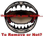 When to Remove your Mercury Dental Fillings