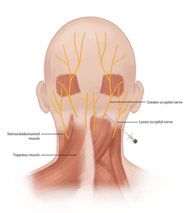 The Science of Pressure Point Self Defense