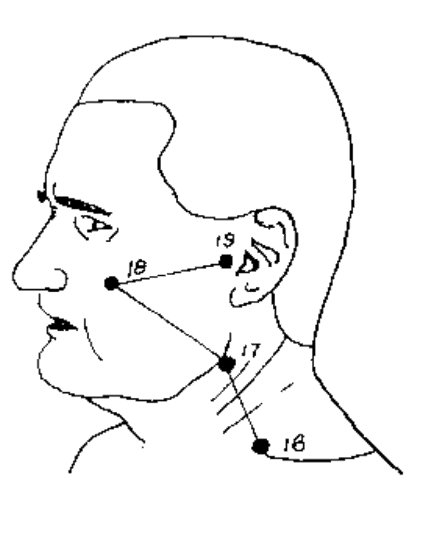 SI-18 Most Painful Face Pressure Points
