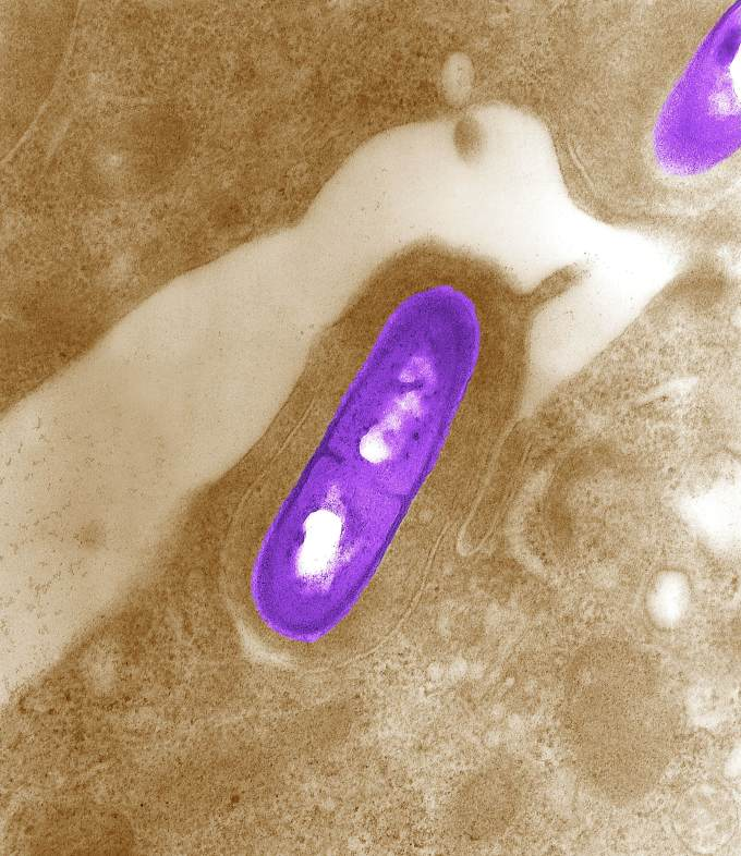 Listeria monocytogenes is the infectious agent responsible for t