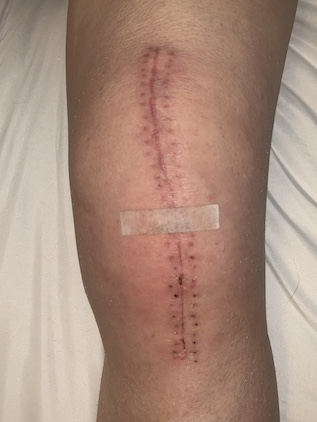 knee replacement at one month