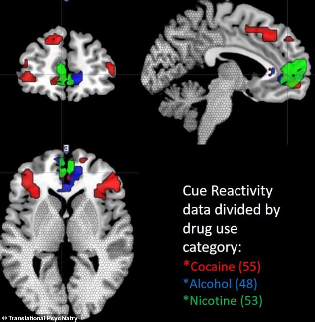 How the brain reacts to cocaine, alcohol and cigarettes-1