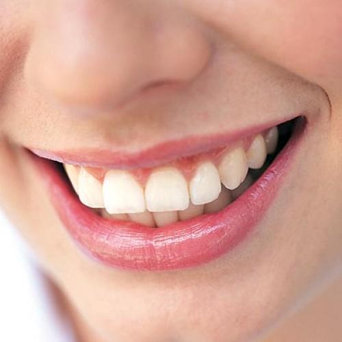sorriso sorridere