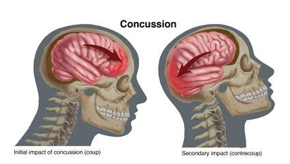 brain diagram inside vw golf mk1 alternator wiring illustrating injuries – artists' blogs | medical illustration sourcebook