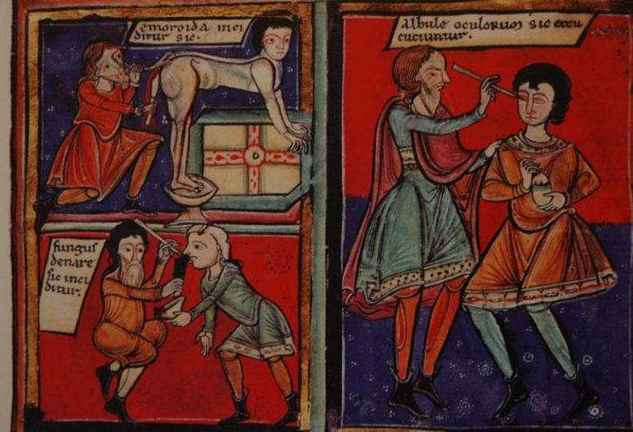 Medecine-Moyen-Age
