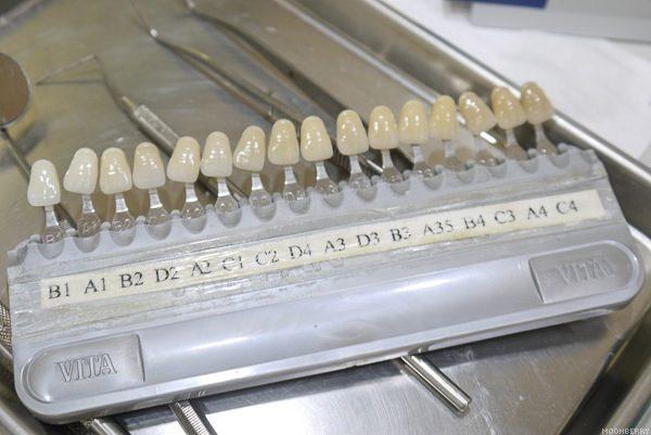 Tooth Shades Chart Erkalnathandedecker
