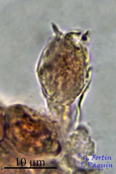 Fig. 10: baside clavée à 3 stérigmates visibles. Il s'agit du seul spécimen de baside avec des stérigmates que nous avons bien observé