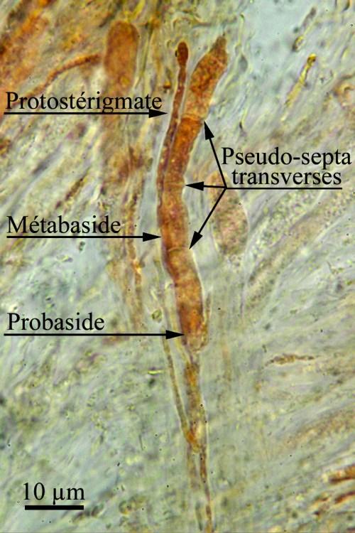 Fig.4. Auricularia americana. Cette phragmobaside semble septée horizontalement ou transversalement. Les quatre haplocytes qu'elle contient ont une paroi qui donne cette impression de septa. Chaque haplocyte germe en un protostérigmate qui se termine par un stérigmate sur lequel apparaît une spore. Par définition, la baside comprend le stérigmate, le protostérigmate, la métabaside et la probaside. ©Guy Fortin