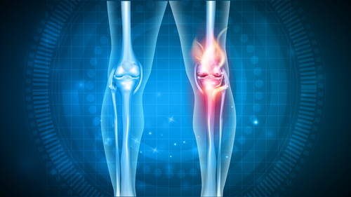 Healthy and injured knees - knee health concept