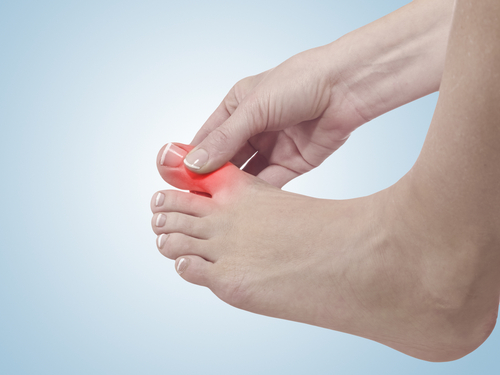 Toe injury graphic concept
