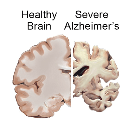 Alzheimer Brain vs. helathy brain