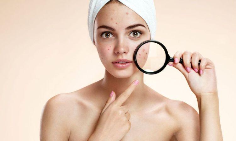 毛孔粗大、抗痘保養關鍵就是它!為什麼水楊酸可以一抹還原柔嫩肌呢?