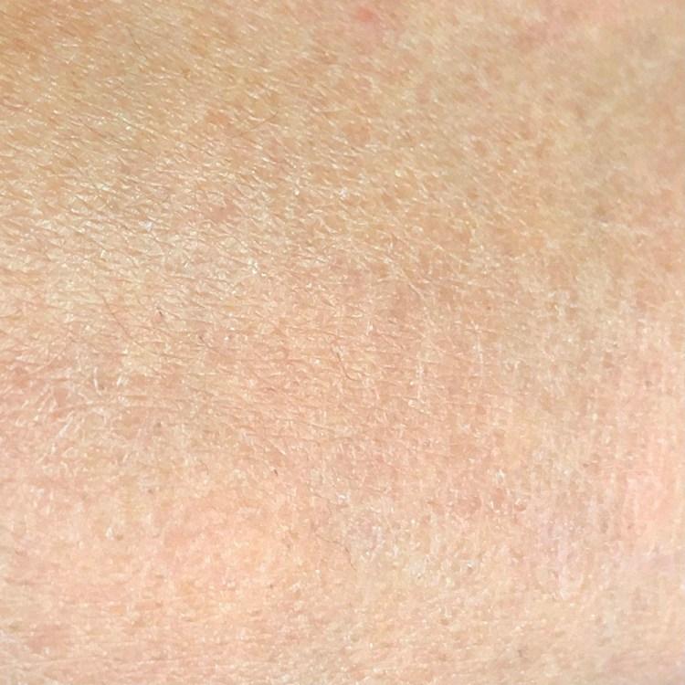 季節交替皮膚狂脫皮?避開三大地雷行為告別乾燥脫屑重現潤澤健康肌