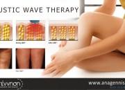 Acoustic Wave Therapy: Επαναστατική θεραπεία τοπικού πάχους!