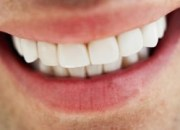 Lifting δοντιών: H πλέον σύγχρονη οδοντιατρική εφαρμογή