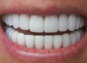 Τι ηλικία έχουν τα δόντια σας; Δόντια στα 7, 17, 27 και 37 χρόνια!