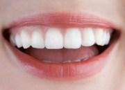 12 χρήσιμες απαντήσεις για τα δόντια σας