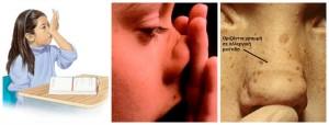 Ο «αλλεργικός χαιρετισμός» και η οριζόντια γραμμή στη μύτη είναι σημάδια αλλεργικής ρινίτιδας