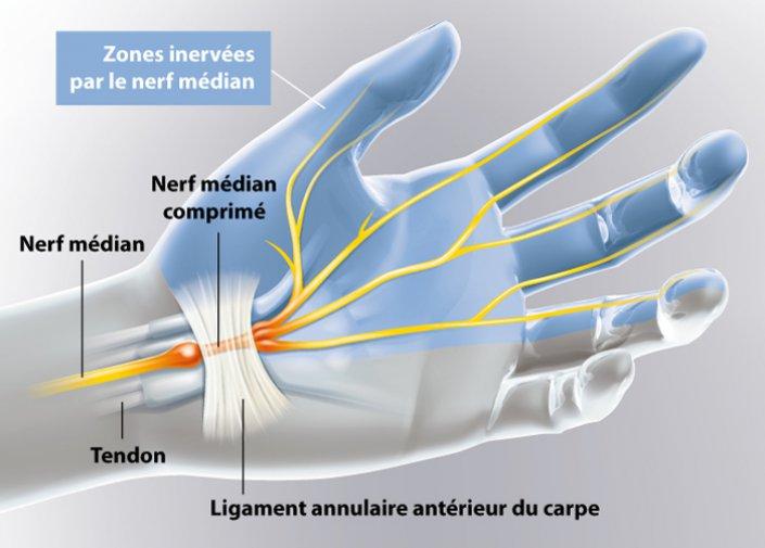 Engourdissement douleurs fourmillements dans les doigts ...