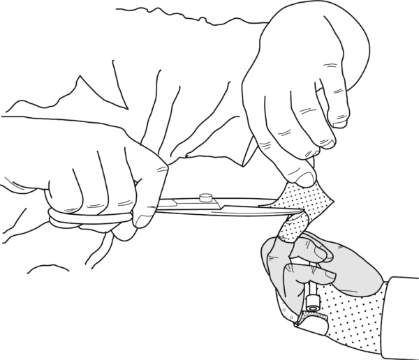 Guide Flexor tendon mobilization splint