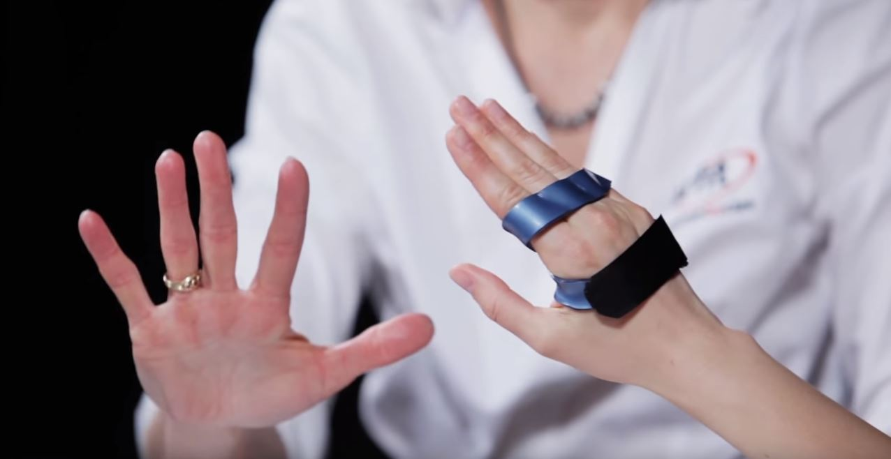 Splinting with Orfit materials: Anti claw orthosis from ...