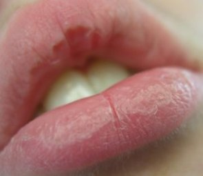 Treat Chapped Lips Naturally | | Outdoor Herbivore Blog