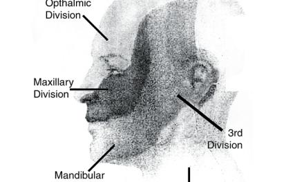 Dermatome Face