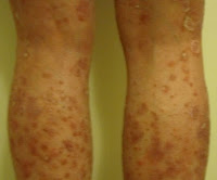 A photo shared by one of our members, Lissa, who has plaque psoriasis and guttate psoriasis.  Click to read her story!