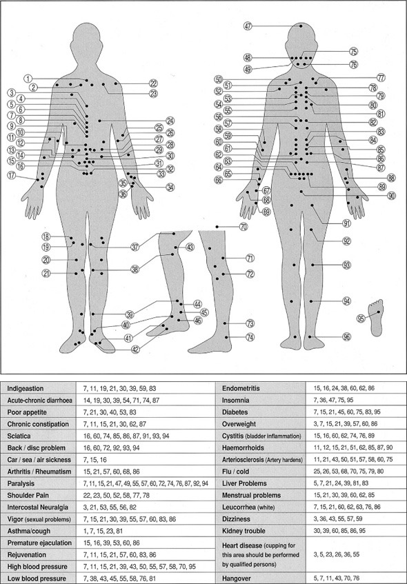 Cupping_set_Therapy_01