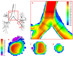Tecplot visualization of inspiratory flow in human airways. Image from Tecplot.