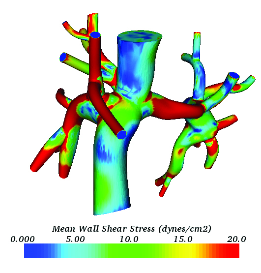 Example of patient-specific blood flow simulation. Image from SIAM News. Click image for article.