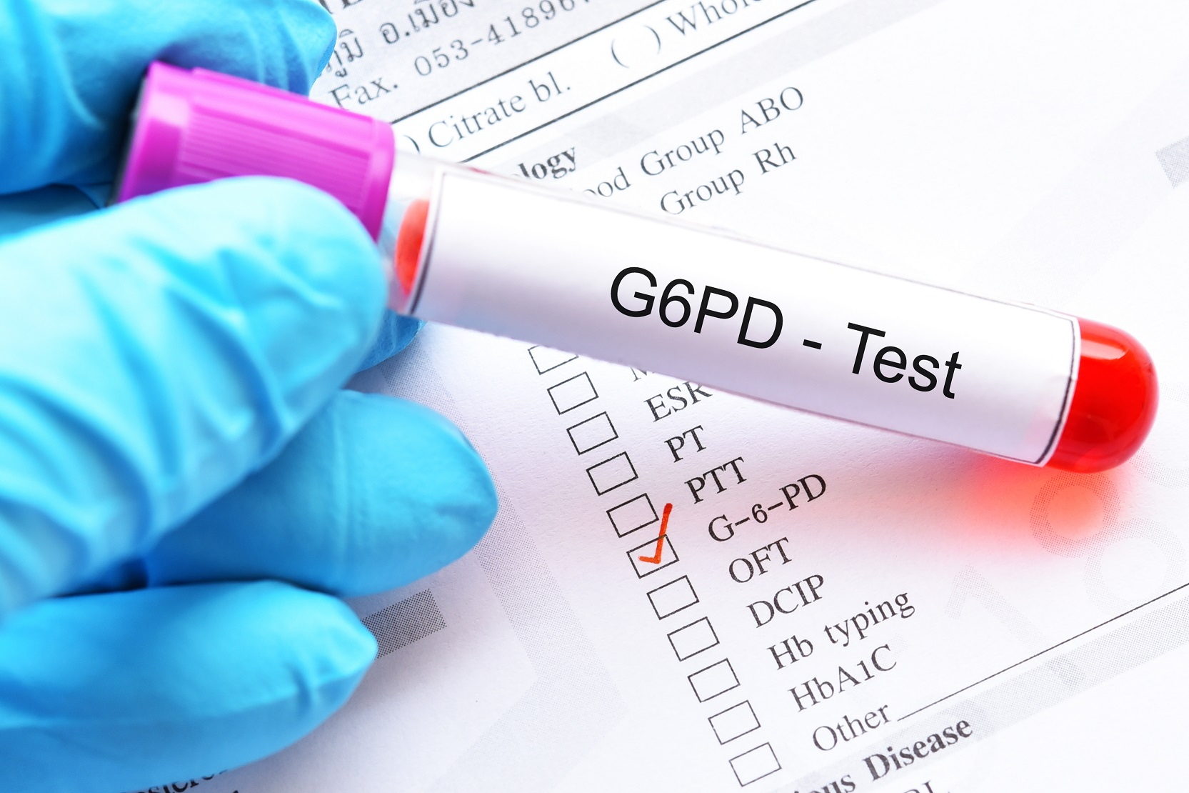 G6PD Deficiency: What You Need To Know If You Are Pregnant