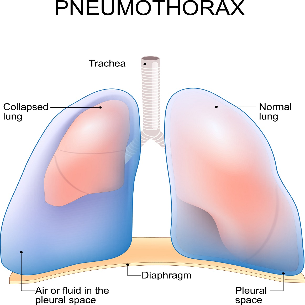Pneumothorax: What Pregnant Women need to Know about Collapsed Lungs