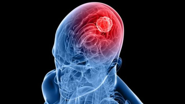 CBD shows promise for fighting aggressive brain cancer