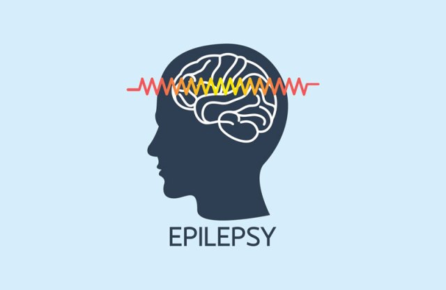 CBD For Epilepsy: Does It Really Work?