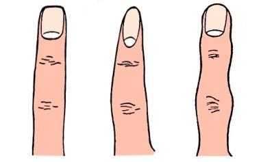 tipos de dedos