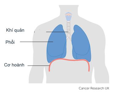 Nấc cụt và ung thư